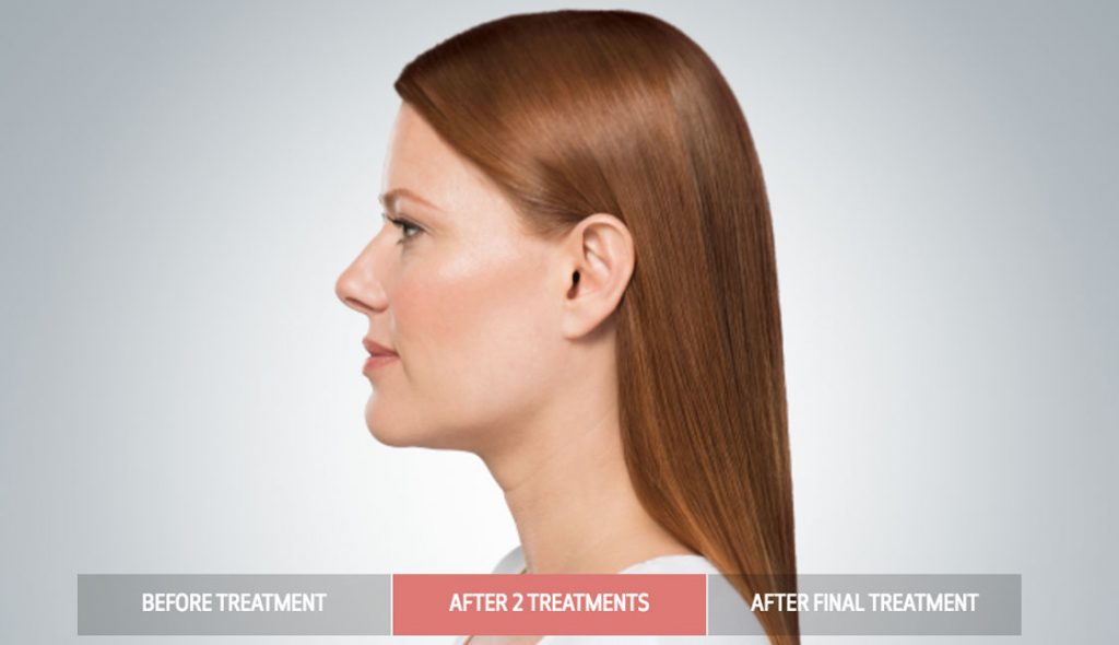 kybella-after-treatment-villano-md