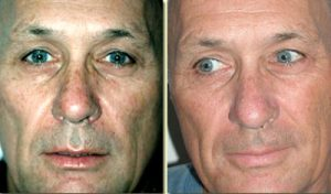 photorejuvenation2